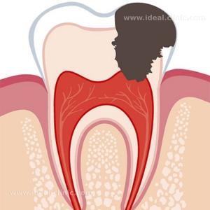 ساختار دندان