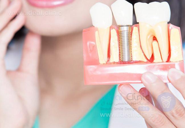 درد بعد از ایمپلنت دندان