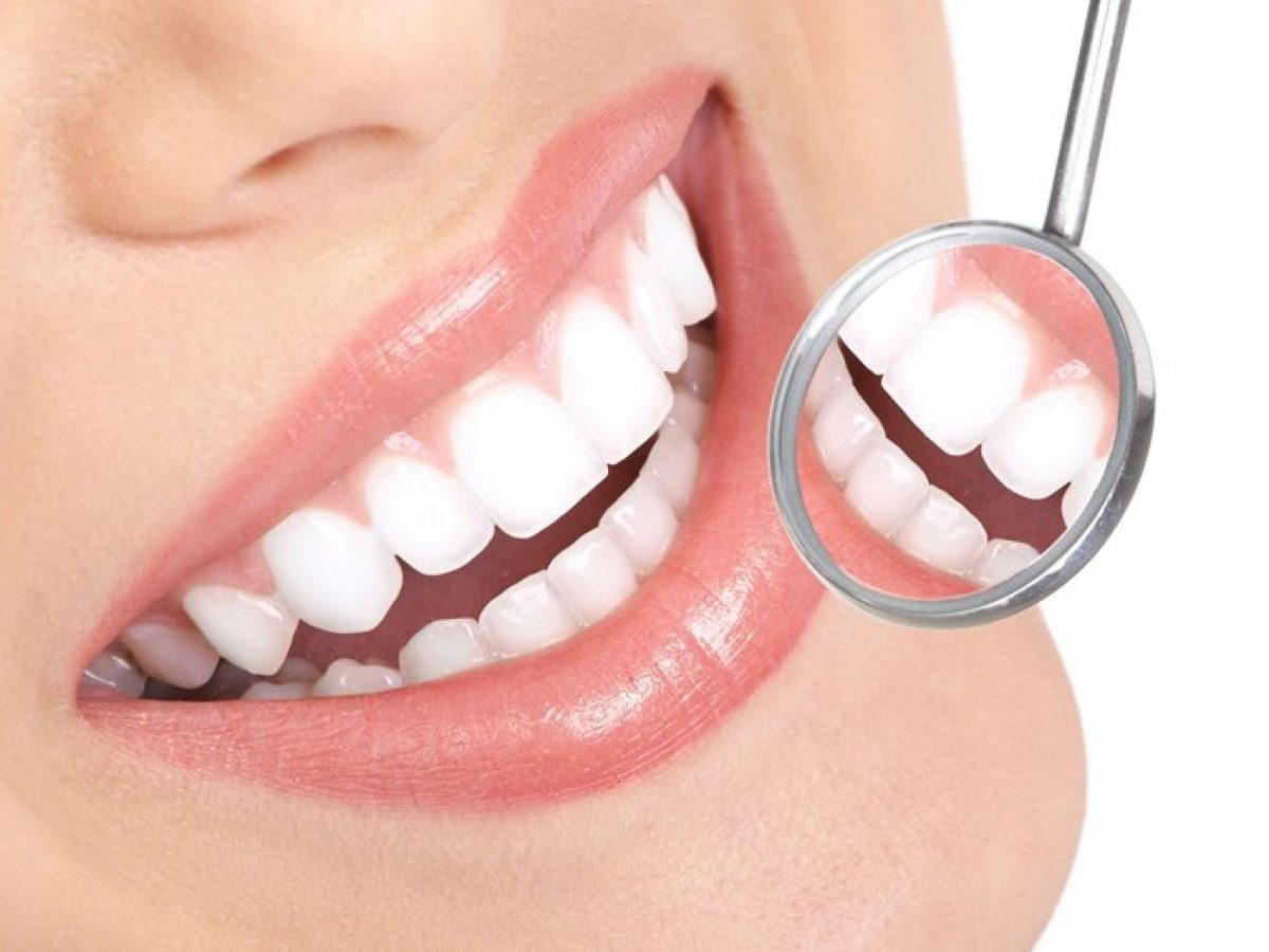 فرآیند بلیچینگ دندان
