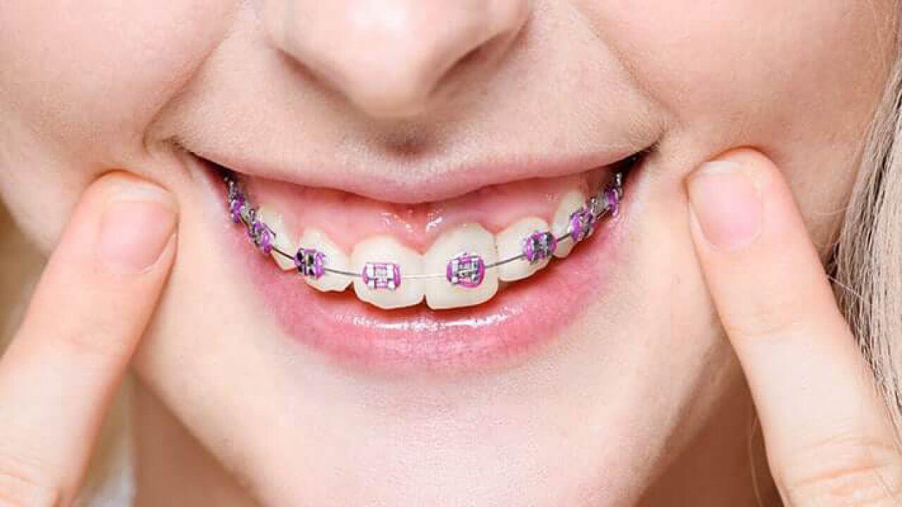 هزینه ارتودنسی دندان با بریس معمولی