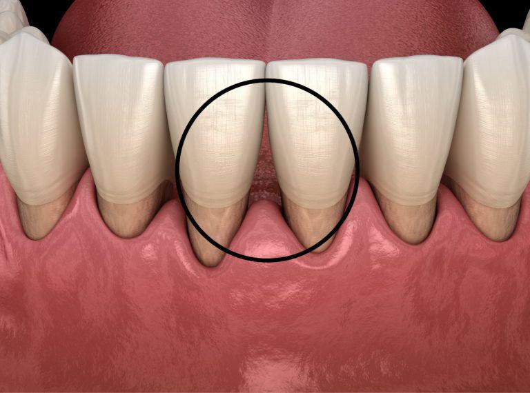فاصله بین دندان ها ناشی از عفونت و التهاب لثه