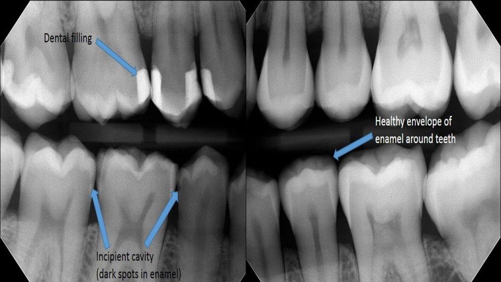 تشخیص پوسیدگی دندان با اشعه ایکس