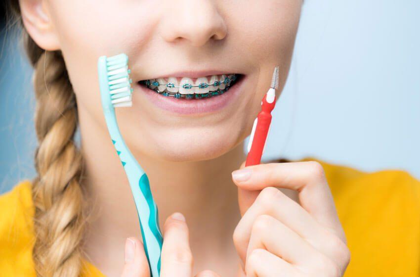 بهداشت دهان و دندان بهداشت ارتودنسی