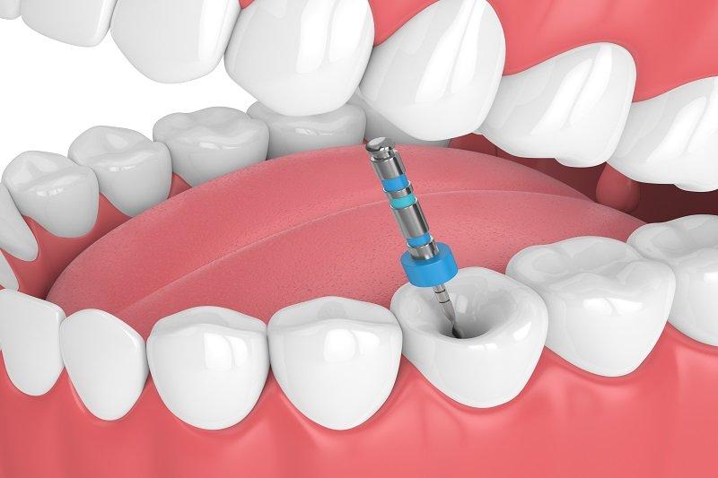 فواید درمان ریشه دندان