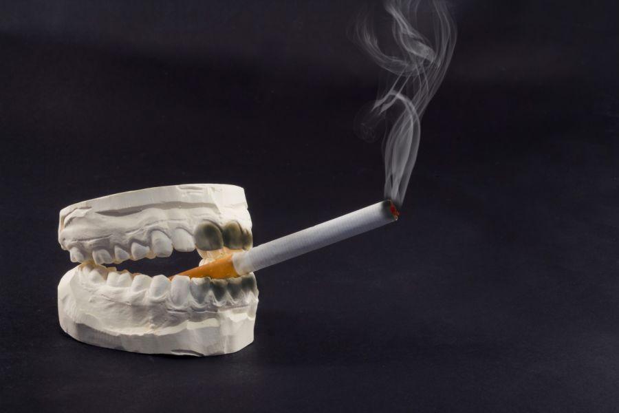 تاثیر سیگار بر ایمپلنت دندان